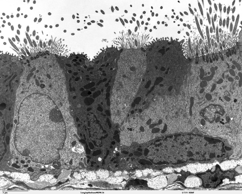 TEM of bronchiolar epithelium of the lung (mouse) – Louisa Howard and Michael Binder, Wikimedia Commons