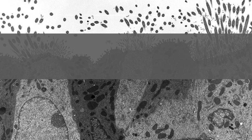 RESEARCH HIGHLIGHT: Minicircle DNA breathes life into airway-delivered gene therapy development