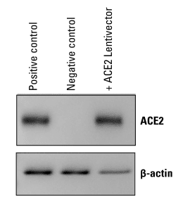 pCDH-CMV-ACE2-EF1α-Puro delivers robust ACE2 expression in HEK293 cells