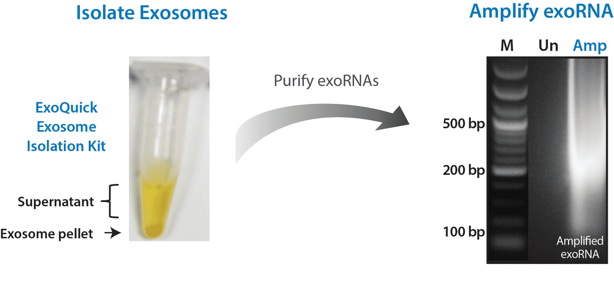 ExoQuick Exosome Isolation and RNA Purification Kit provides better qPCR profiling