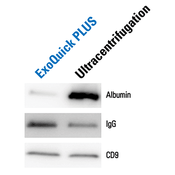 ExoQuick Plus delivers dramatically less contaminating albumin than ultracentrifugation-based isolation methods