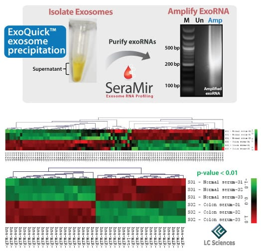 SeraMir provides reliably better qPCR profiling than exosomal RNAs isolated using phenol/trizol