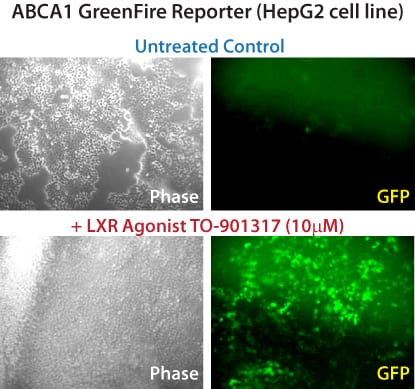Develop target gene-specific LXR agonists that could regulate reverse cholesterol transport without increasing lipogenesis