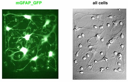 Live imaging of neuronal differentiation