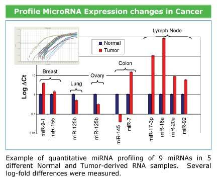 Use the QuantiMir Kit to profile miRNAs from cancerous and normal tissues